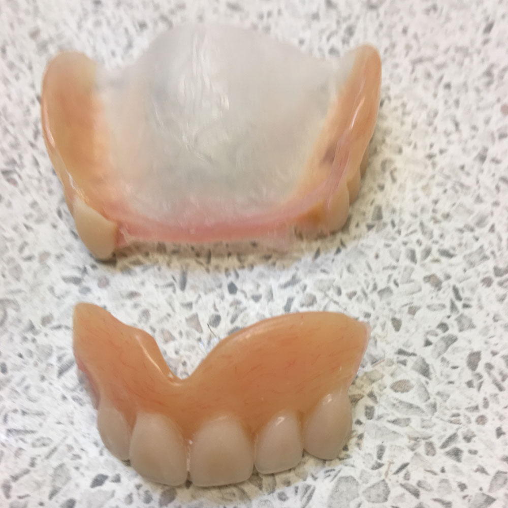Repairs from The Denture Clinic, Deal